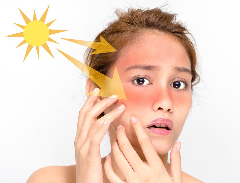 Twitterから見る「日焼け」と「紫外線」。紫外線とつぶやくのは○○世代に多い!?|SNSコラム|ホットリンク